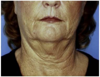 Фіг. 1 Цю пацієнтку записали на двоплощинне лицеве омолодження з випадком повноти глибинної шиї