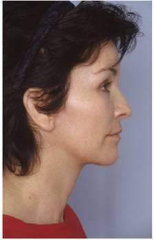 Фіг. 12 Післяопераційний вид після повного (BEAM) омолодження обличя.