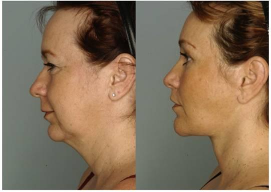 Фіг. 14 Пацієнт до і після ТЕАМ омолодження обличчя.