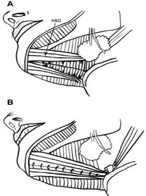 Фіг. 9 Після резекції шийного жиру передня частина