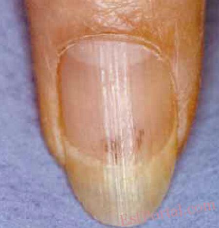 Дистрофия ногтей форум 13